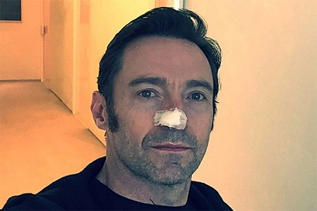Hugh Jackman skin cancer