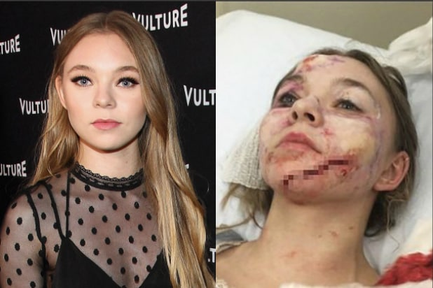 Deadpool Taylor Hickson lawsuit injury Ghostland scar